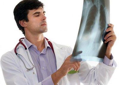 Симптомы и лечение бронхопневмонии