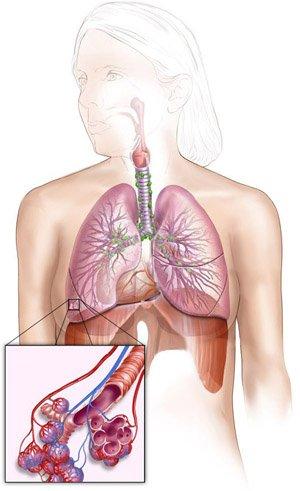 Доклад заболевание органов дыхания 1260